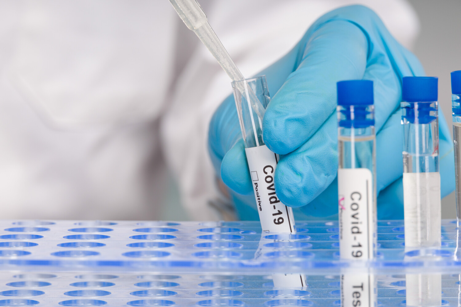 London-based fit-out and refurbishments company BW's COVID-19 antibody tests reveal that 31.25% of employees have had the virus